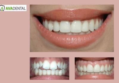 معایب کامپوزیت دندان