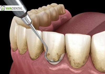 جدیدترین روش های جرم گیری دندان چیست؟